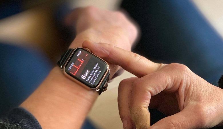 Функция получения ЭКГ в часах Apple Watch спасла человеку жизнь спустя несколько часов после выхода