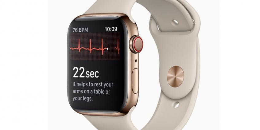 Часы Apple Watch обнаружили проблемы с сердцем у пользователя, который называл функцию получения ЭКГ решением для ипохондриков